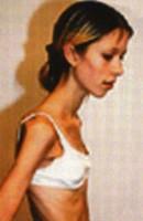 ¿Qué sintomas produce la anorexia?