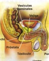 Que es la próstata y sus enfermedades