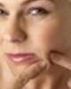 Cómo se debe cuidar la piel con barros y espinillas