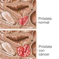 Porqué se produce el cáncer de próstata