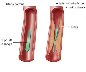 Qué es la arteriosclerosis