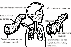 Definición de asma bronquial en niños