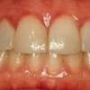 Consejos para combatir la gingivitis