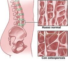 Clasificación de la osteoporosis