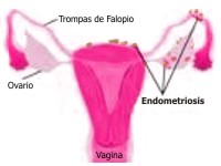 ¿Se hereda la endometriosis?