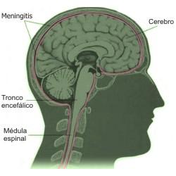 Meningitis bacteriana, meningitis viral