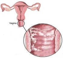 Candidal Vulvovaginitis Home Remedies
