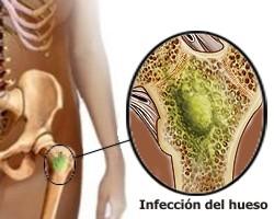 Definición de osteomielitis