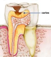 Prevención de las caries dental