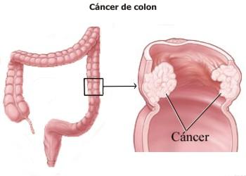 Cómo se evita y se combate el cáncer de colon