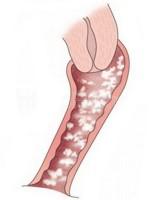 Cuáles son las causas de la candidiasis genital