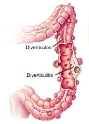 Cuáles son los síntomas de la diverticulosis