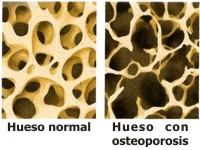 Cómo se puede prevenir la osteoporosis