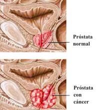 Qué síntomas tiene el cáncer de próstata