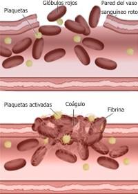 Cómo se forma un coagulo de sangre