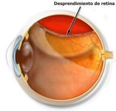 Definición del desprendimiento de retina