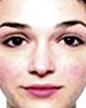 Cómo disimular la cuperosis o enrojecimiento facial