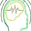 Porqué se origina la epilepsia