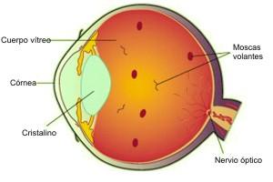 Moscas volantes en los ojos, moscas volantes en la vista visuales