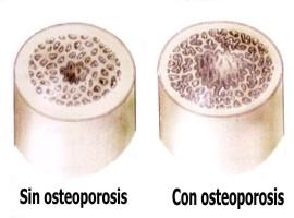 A qué se debe la osteoporosis