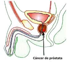 Señales del cáncer de próstata