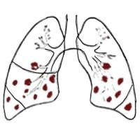 Neumonía bronconeumonía