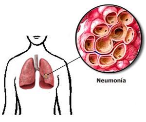Qué provoca la neumonía