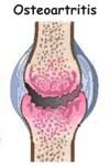 Cómo se diagnostica la osteoartritis