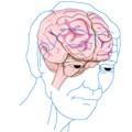 Cuáles son los síntomas iniciales del Alzheimer