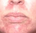 Como tratar la dermatitis perioral