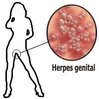 Signos del herpes genital en las mujeres