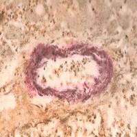 Concepto de amiloidosis
