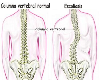 Como se puede detectar la escoliosis