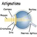 Cuál es el astigmatismo regular e irregular