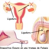 Ejemplos de métodos anticonceptivos permanentes