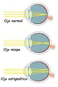 Cuál es la diferencia entre astigmatismo y miopía