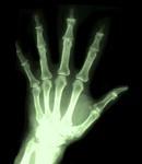 ¿Cuál es la artrosis primaria y la secundaria?