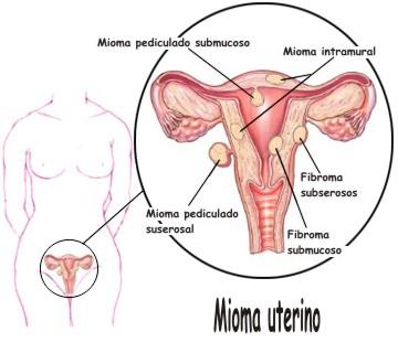 Portal do Mioma: Tipos de Miomas