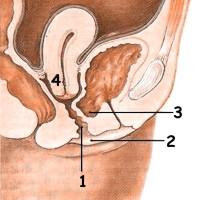 Información de prolapso genital femenino
