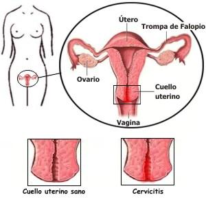 En qué consiste la cervicitis