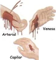 Cómo se controla una hemorragia