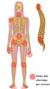 Que partes del cuerpo ataca la artrosis