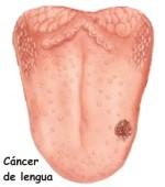 Como aparece el cáncer de lengua
