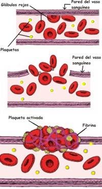 En qué consiste la fibrinólisis