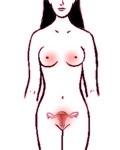 Ubicación de los fibromas en la mujer