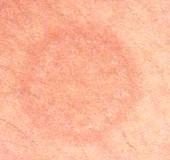 Qué provoca el eritema anular centrífugo