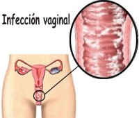 Porque se dan las infecciones vaginales