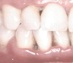Gingivitis de Vincent