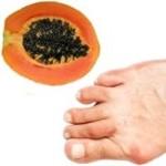 La papaya es buena para el acido úrico