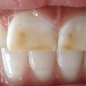 Concepto de fluorosis dental